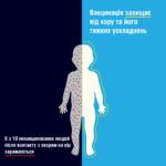 В Одессе распространяется заразная болезнь, которая может привести к инвалидности и смерти